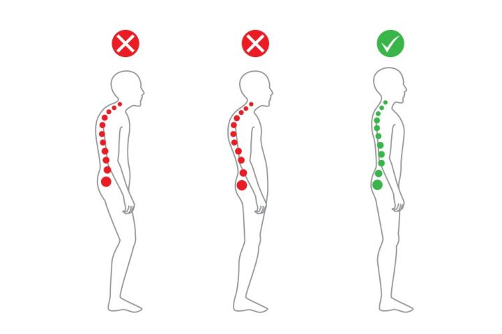 Our Ealing Chiropractor explains Poor and good posture